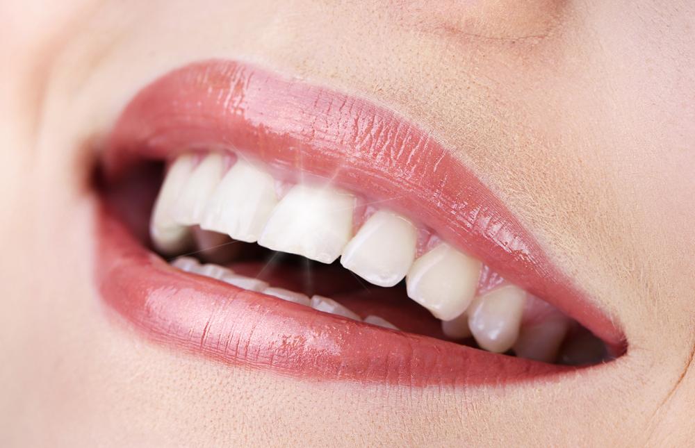 השתלות שיניים בתל אביב